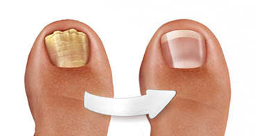 New Israeli-made nail polish gets rid of toenail fungus