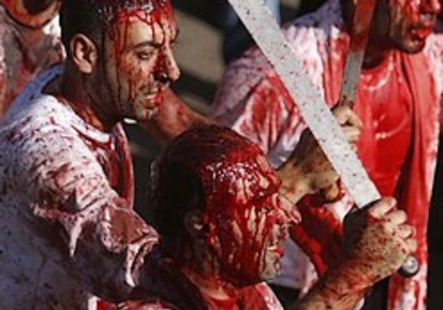 shiites self inflicted wounds GORY 248.8