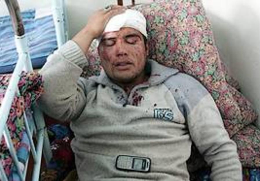 An Ethnic Uzbek reportedly injured during morning