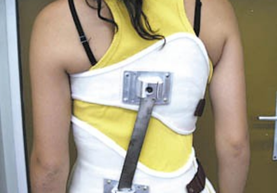 New back brace may help correct scoliosis