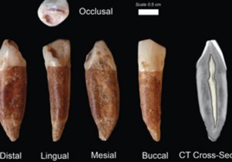 Teeth found at the Qesem cave near Rosh Ha'ayin