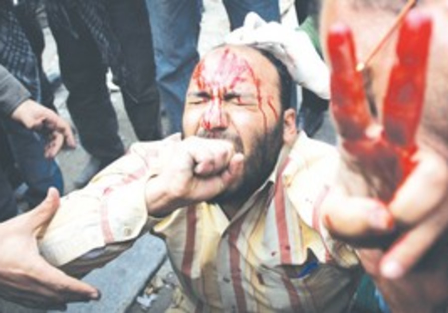A bloodied Egyptian protester gives peace sign