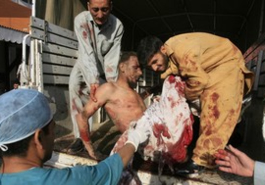 Man injured in bomb in Charsadda is treated.