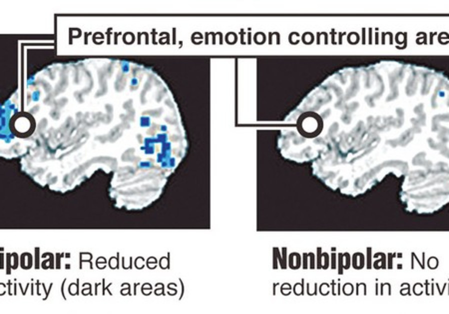 Different reactions in the brain.
