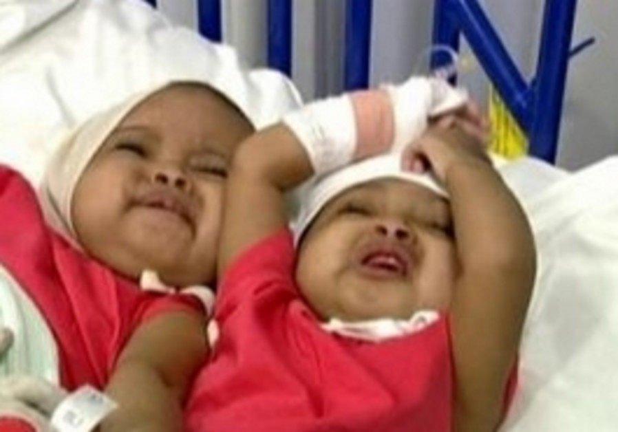 Sudanese conjoined twins