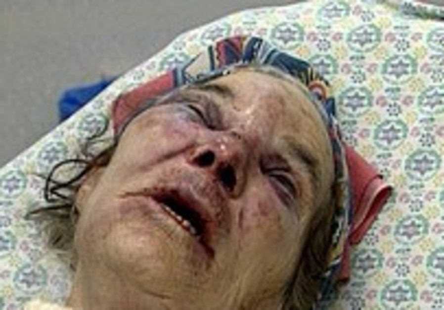 Elderly woman brutally assaulted, robbed