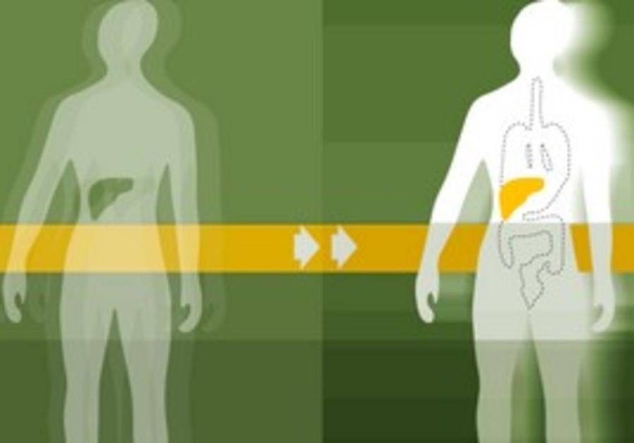 organ transplant [illustrative]