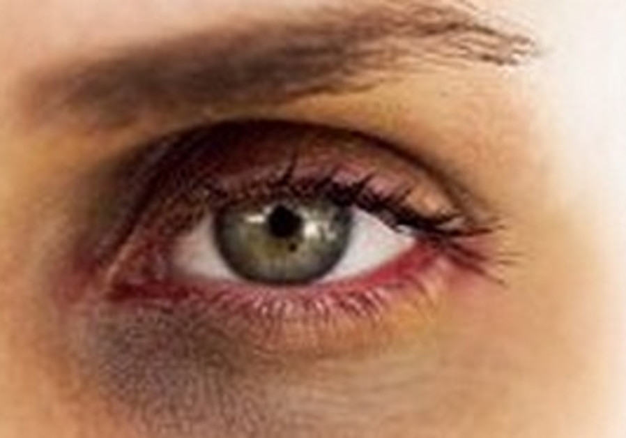 Illustrative picture of a bruised eye