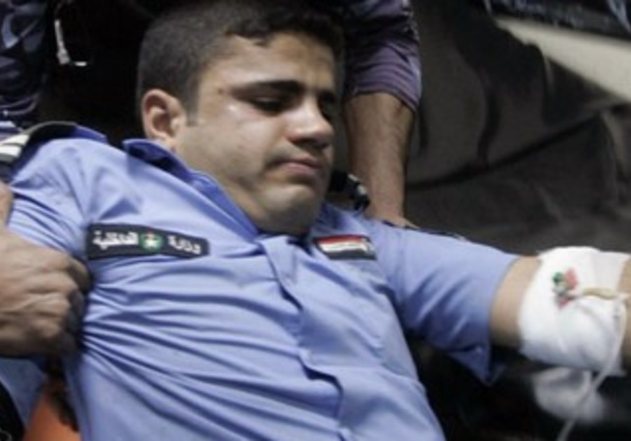 An injured Iraqi policeman [file]