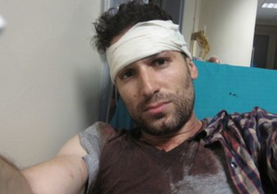Gil Shefler after being attacked by Greek mob