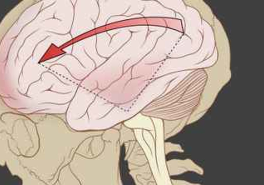 Concussion awareness helps reduce complications - Health & Science ...
