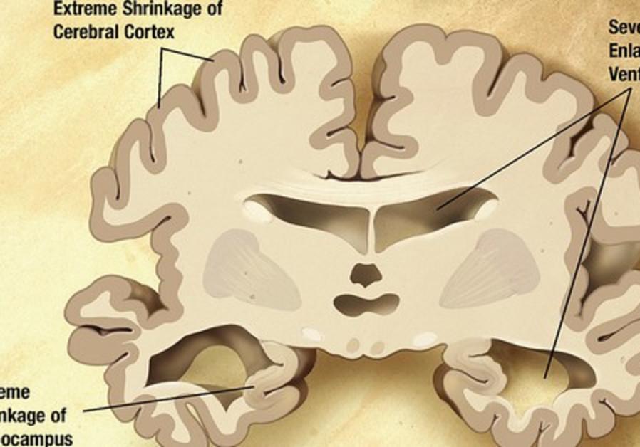 Brain with Alheimer's