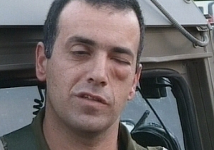 officer black swollen eye 298.88