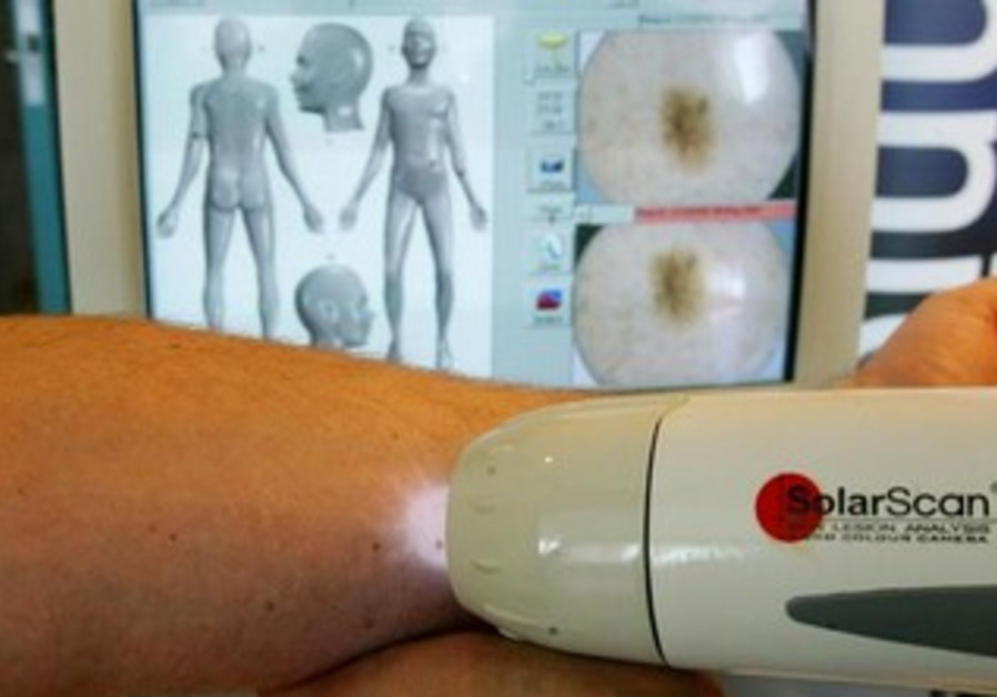 SolaScan, a device to detect skin cancer [file].