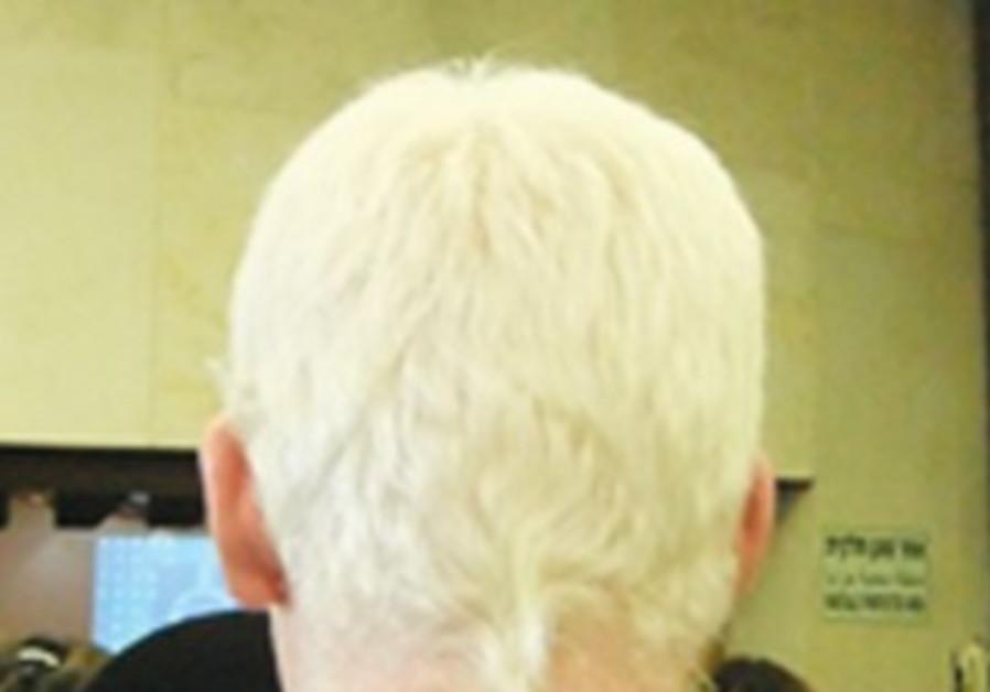An albino man