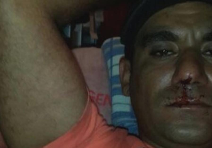 Ayal Gavriel, who was beat by African migrants in Tel Aviv.
