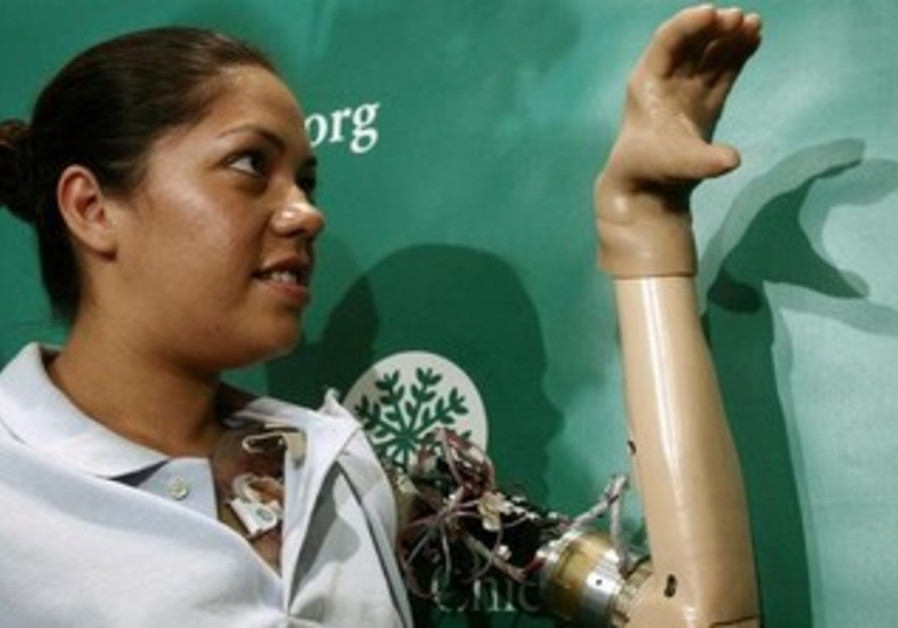 Claudia Mitchell, the first woman to receive a bionic arm.