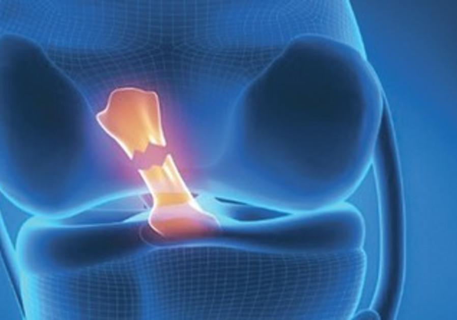 Torn knee ligament.