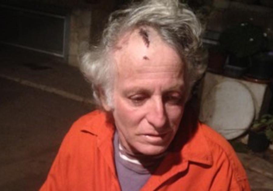 ARIK PELZIN shows the injuries he sustained during a brutal assault last week