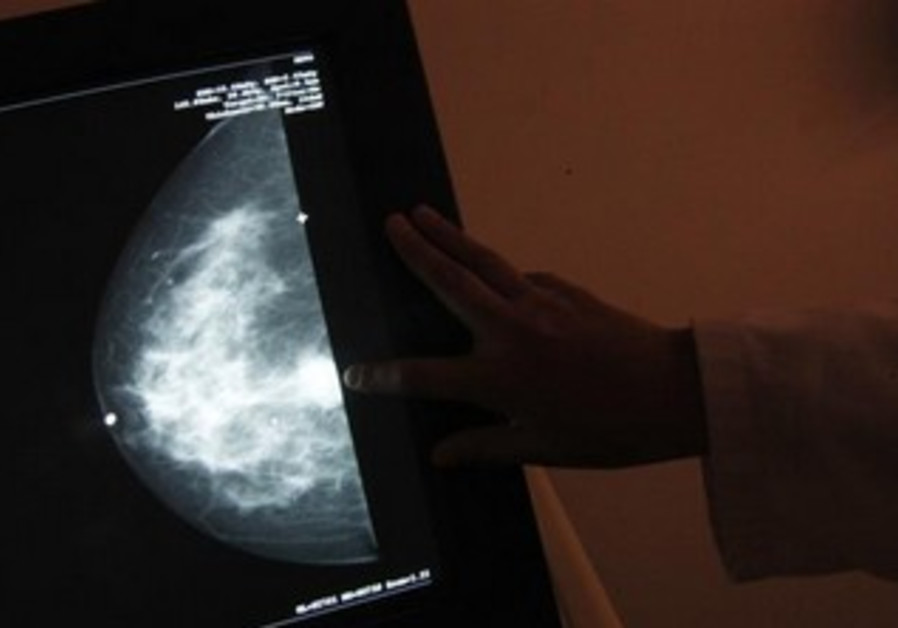 A monitor shows the image of a woman infected with breast cancer.