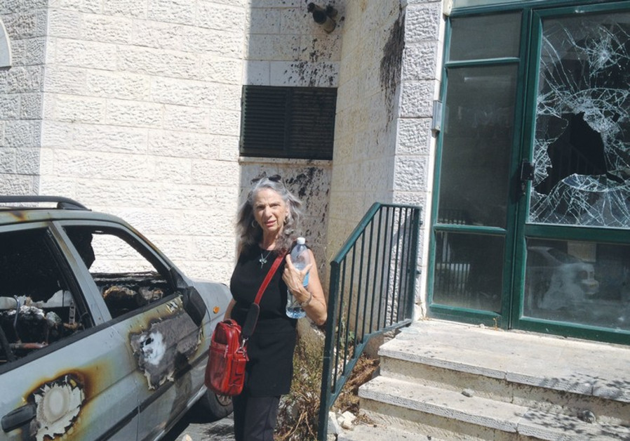 ABU TOR resident Bonnie Brooks stands near a car that was firebombed