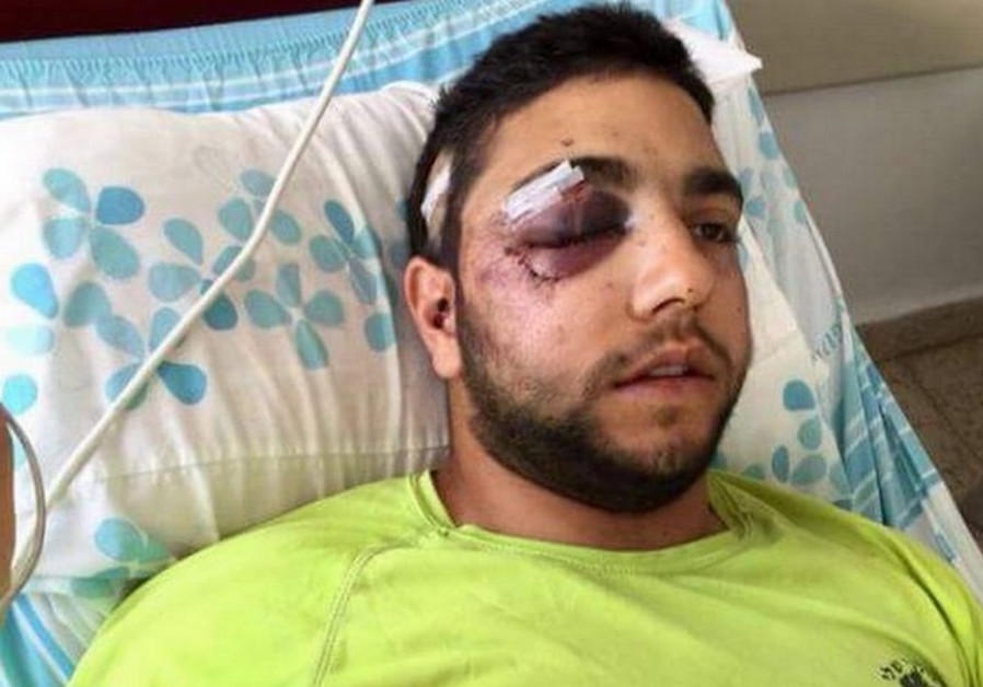 Druse IDF soldier Razzi Houseysa in hospital after beating