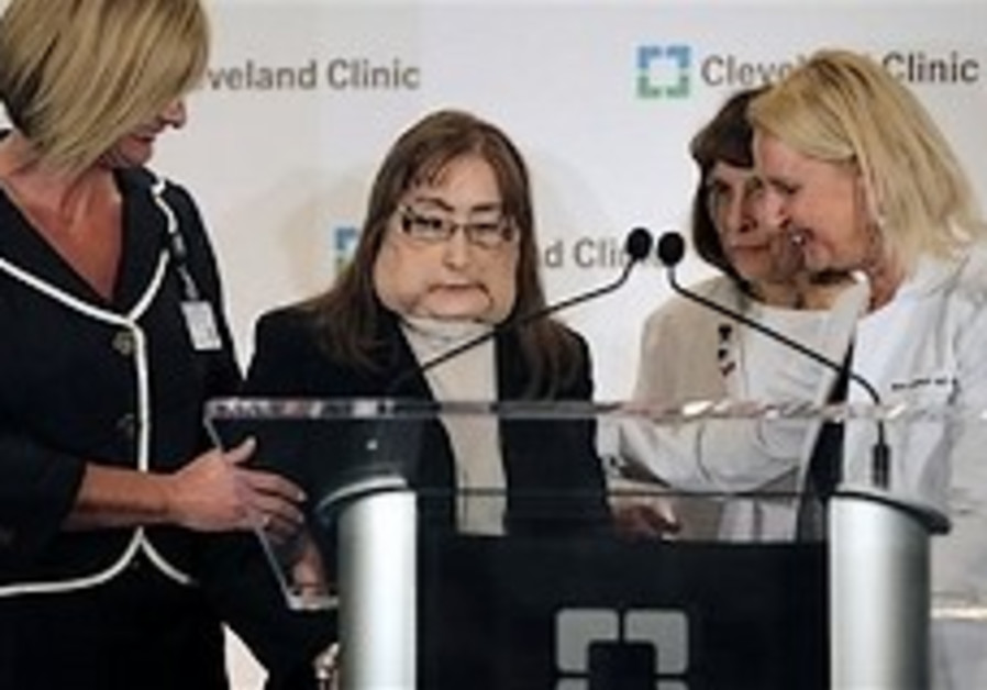 America's first face transplant patient shows face