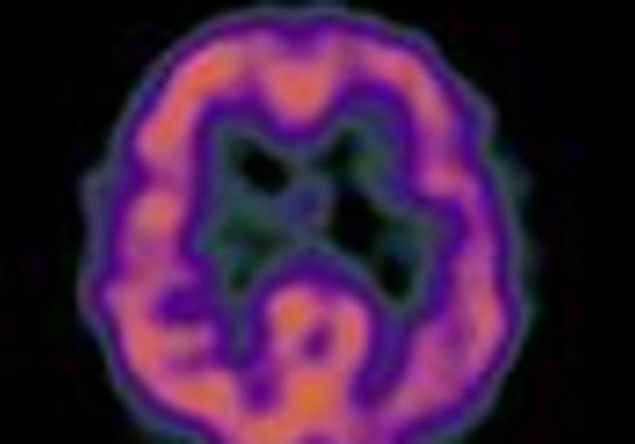 alzheimer's brain 88