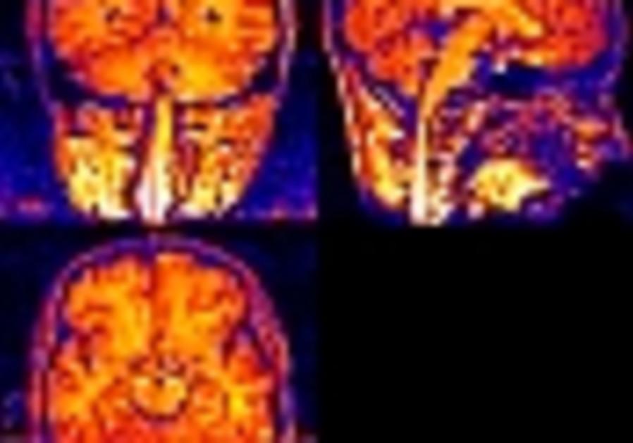 brain 88