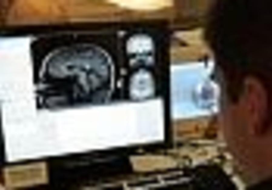 brain scan 88