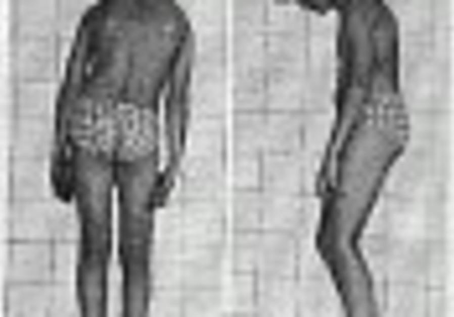 Ashkenazim and dystonia