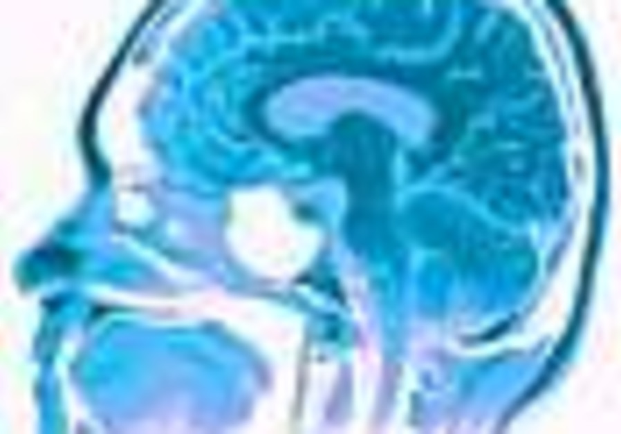 J'lem researchers find brain's 'center of alertness'