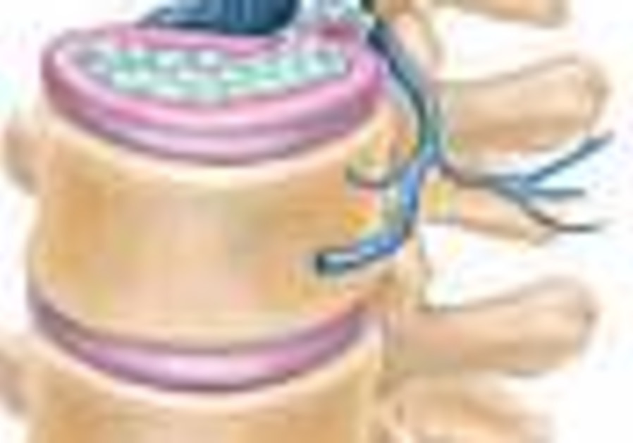 Rx for Readers: Herniated disks