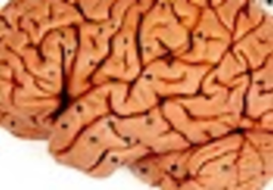 UK psychiatrists study Israeli, Palestinian views of mental illness, religion