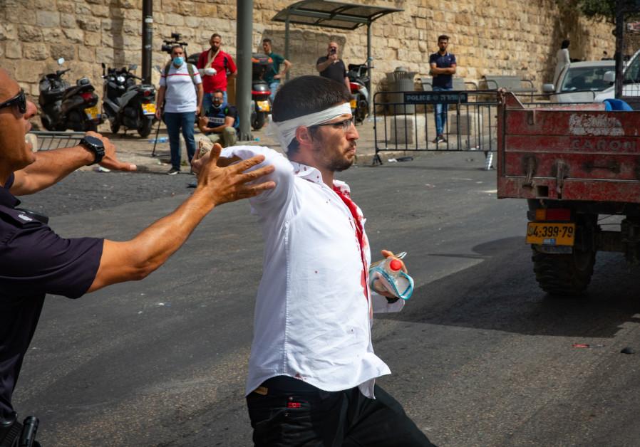 Een gewonde joodse man gezien nadat zijn auto crashte toen een menigte zijn auto bekogelde met stenen buiten de oude stad van Jeruzalem, 10 mei 2021. (Flash90)
