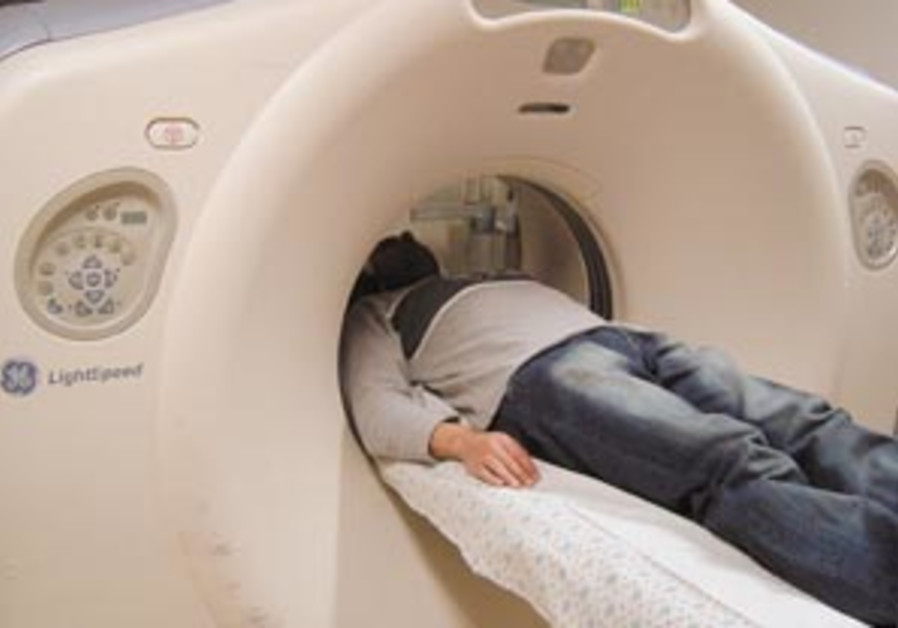 ct scan feat 88 298