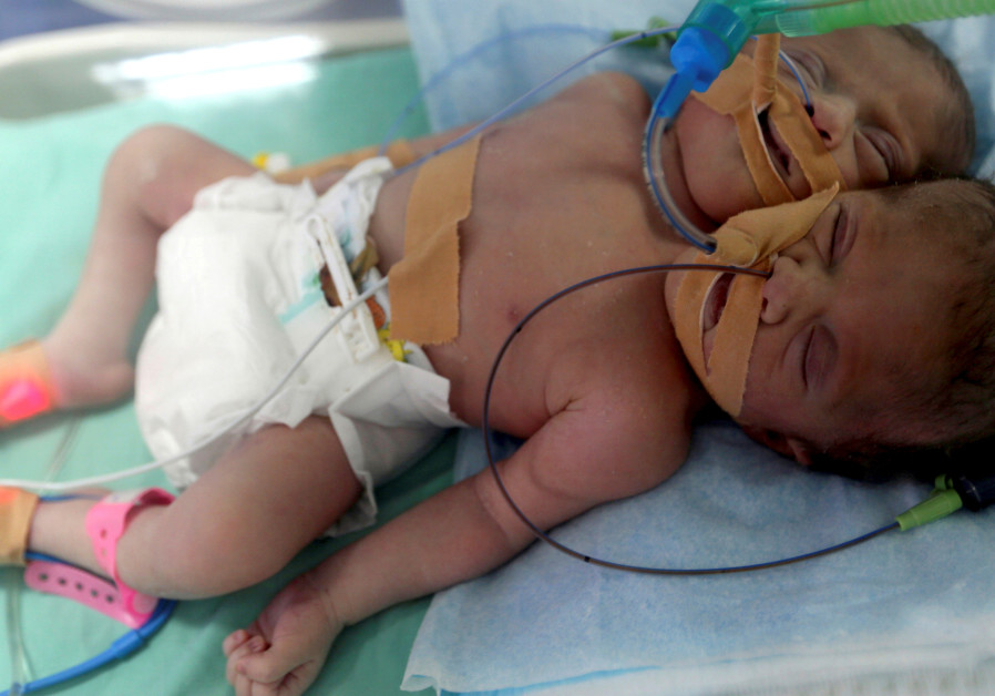 Conjoined twins born in Gaza join long list of unusual births in region