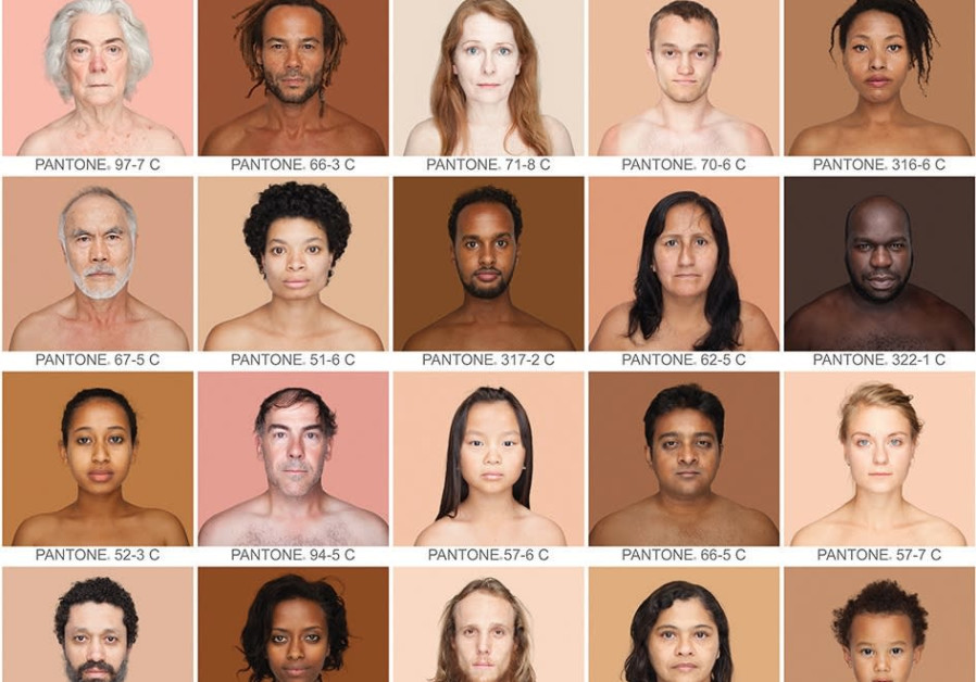 Angelica Dass challenges racial preconceptions associated with skin color.
