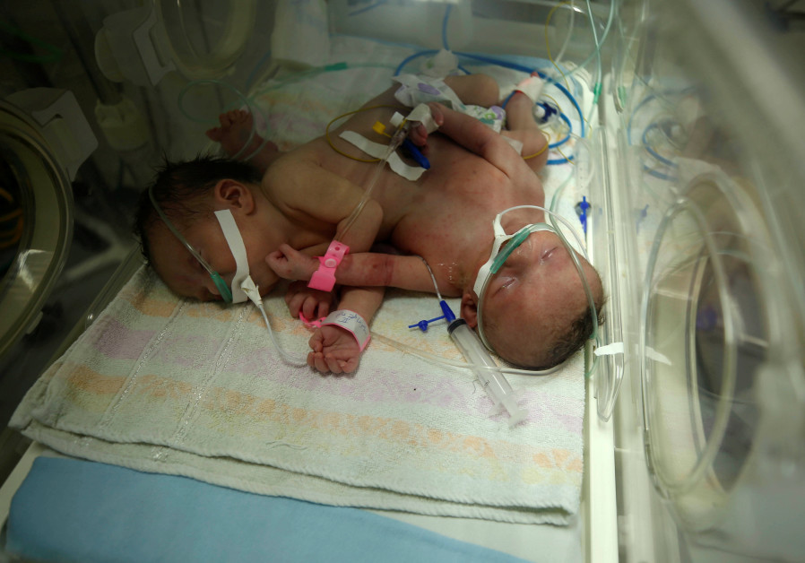 Conjoined twins Haneen and Farah are seen in an incubator at a hospital in Gaza City, October 26, 20