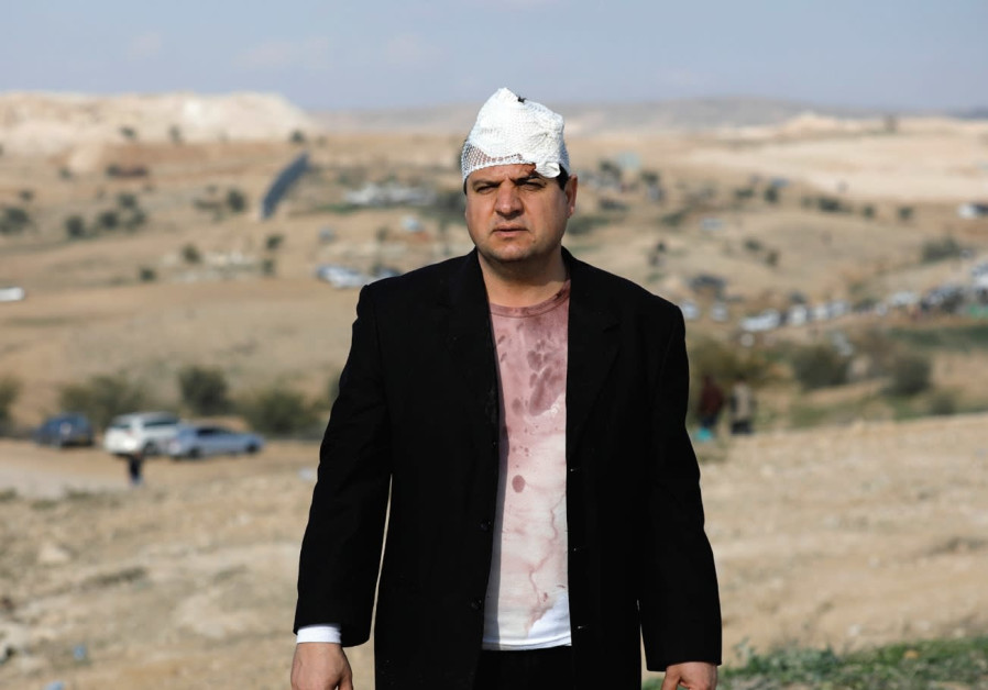 JOINT LIST CHAIRMAN Ayman Odeh is seen after he was injured last year during a clash with police.