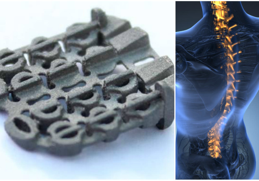 ZygoFix's spin and an illustration of the human spine