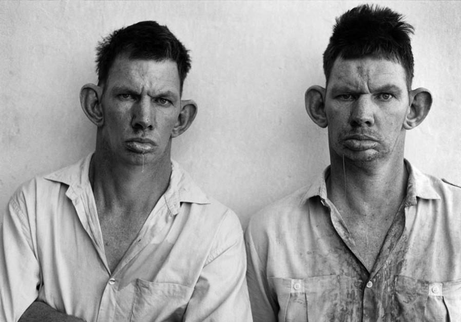 Roger Ballen's 'Dresie and Casie, twins'