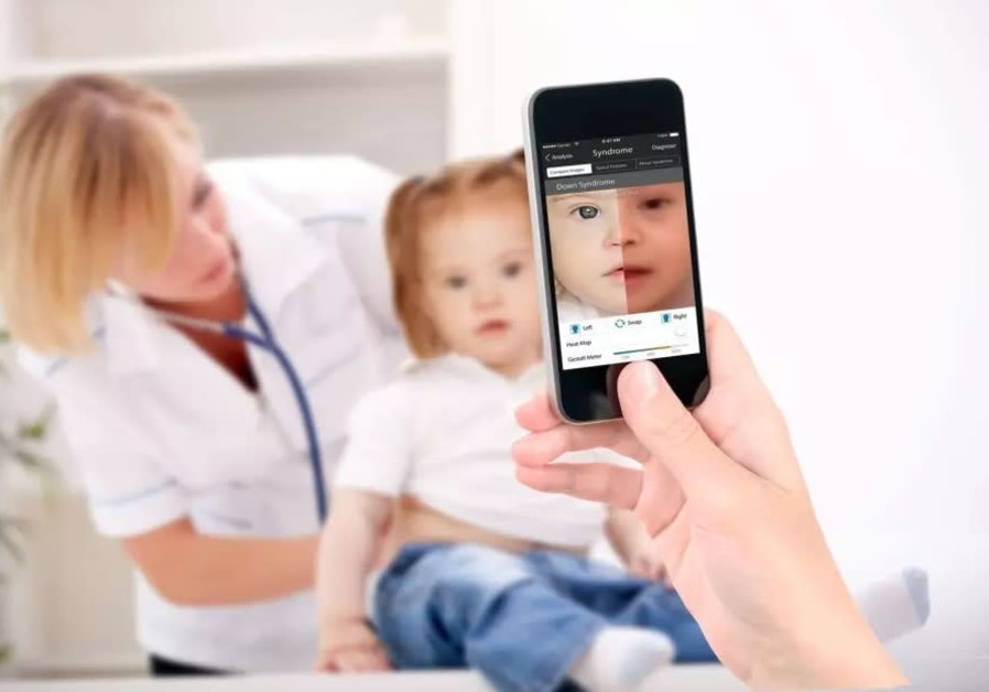 Facial recognition technology highly beneficial in genetic medicine