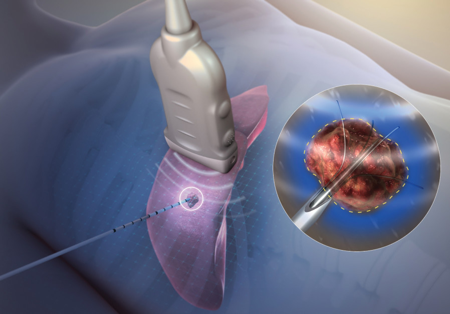 TECHSOMED'S SYSTEM removes the 'blindfold' in the thermal ablation cancer treatment