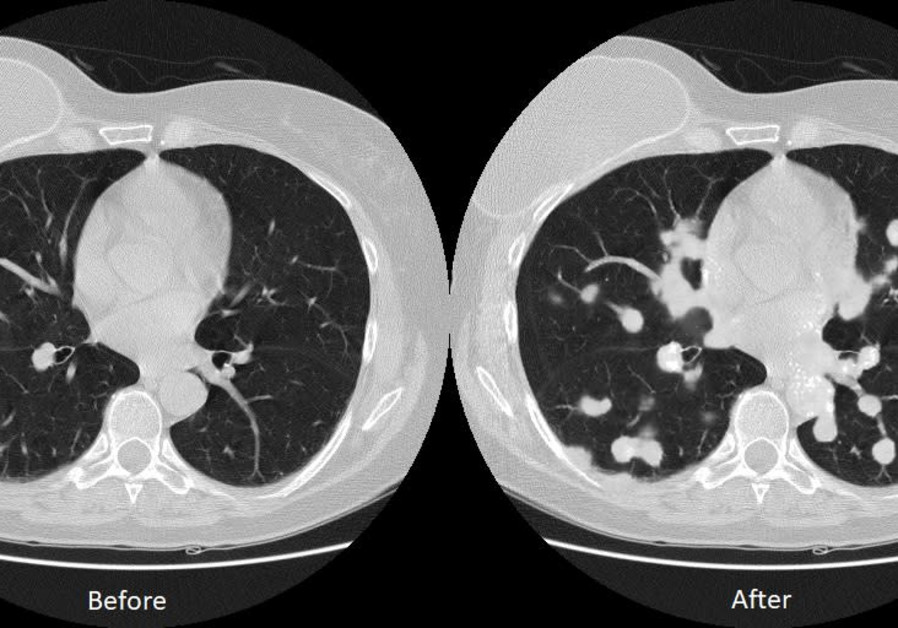 Hackers can easily change lung cancer scans: Israeli research