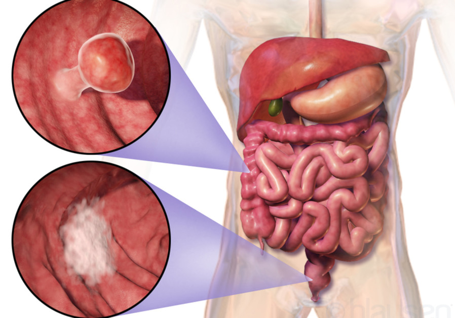 Israeli colon cancer research could double patients' life expectancy