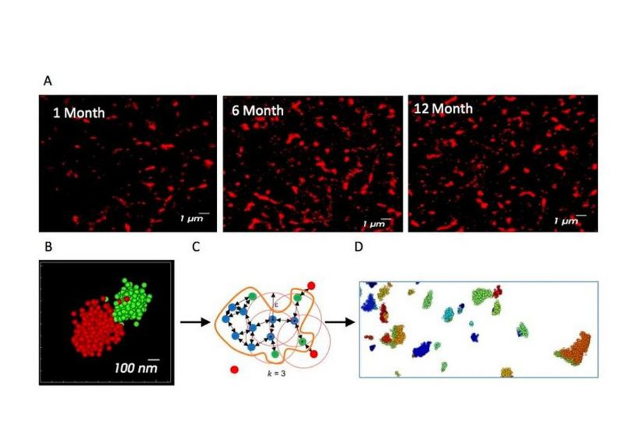 Tracking alpha synuclein aggregation using super-resolution microscopy and analysis allows early detection of Parkinson's disease. (photo credit: PROF. URI ASHERY AND PROF. DANA BAR-ON)