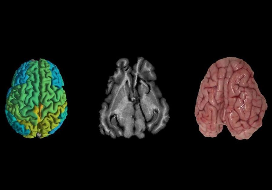 Israeli imaging techniques can help doctors predict Alzheimer's, cancer
