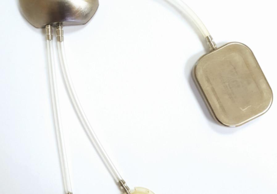Hillel's Tech Corner: Using tech to replicate the pancreas
