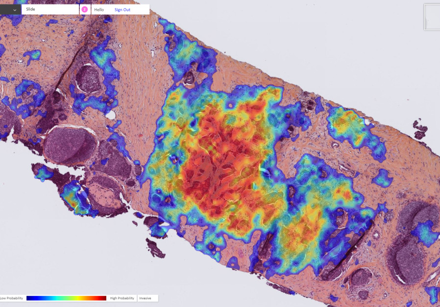 Breast cancer detected by Ibex's Galen Breast AI solution - the tumor is marked with a heatmap. (Credit: Ibex)